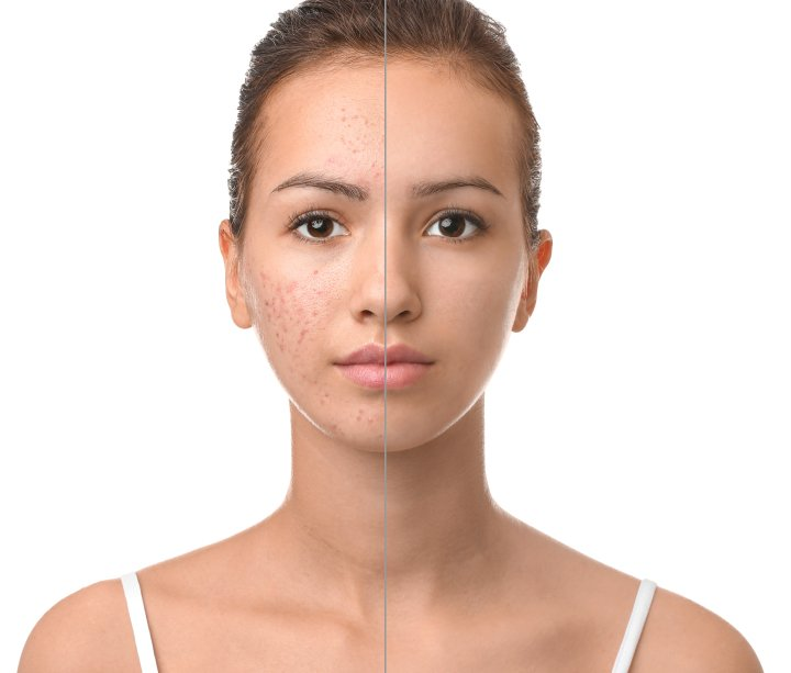 Dermatology Appointment For Acne – What to Expect